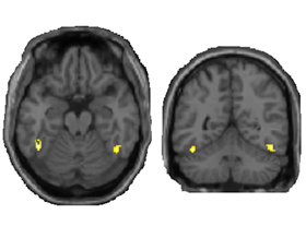 New fMRI data show that vision is more complex than scientists previously thought.