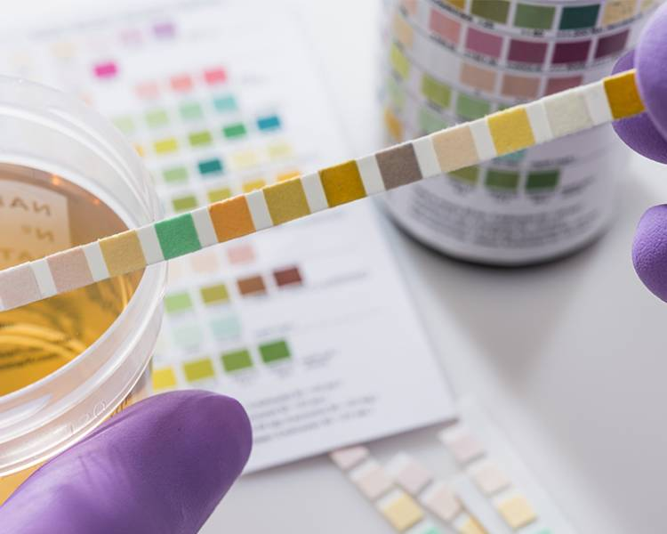 photo of urinary test swab