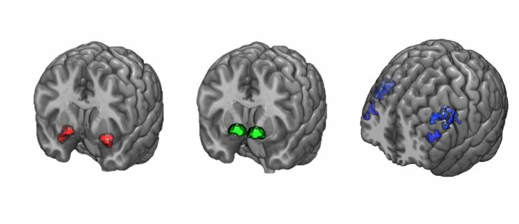 Three brain scans show the locations of the dorsolateral prefrontal cortex, the amygdala, and the ventral striatum