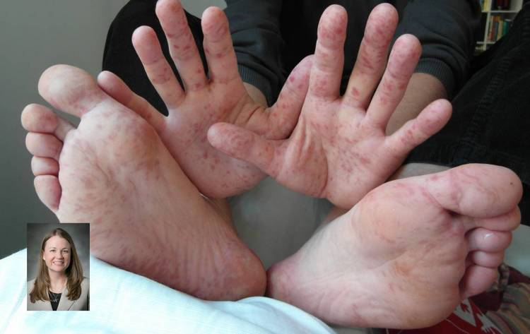 Amanda Hargrove. Hand, foot and mouth disease in an adult