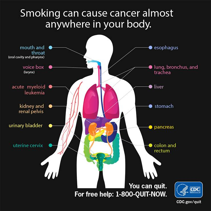 An infographic shows where smoking can cause cancer in the body. Image courtesy of the Centers for Disease Control and Prevention.