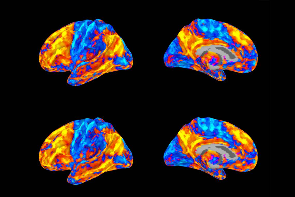 Four MRI scans of a brain in multiple colors