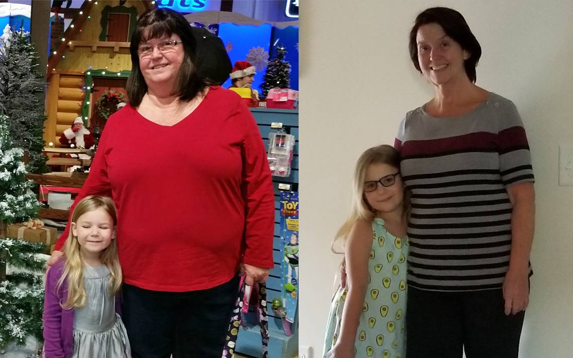 Bariatric surgery helped Sherry Poret of Duke Clinical Research Institute lose around 100 pounds. Photos courtesy of Sherry Poret.