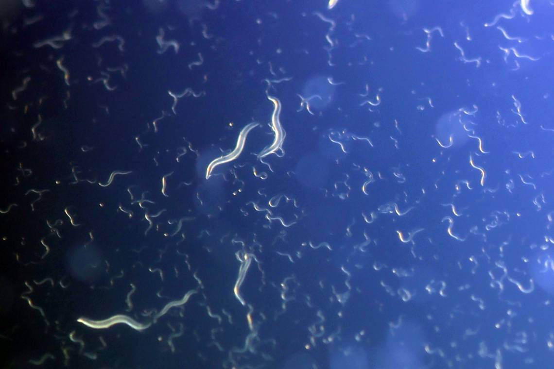C. elegans worms whose mothers didn't get enough to eat during pregnancy cope better with famine. Photo by Richard Pell, Carnegie Mellon.