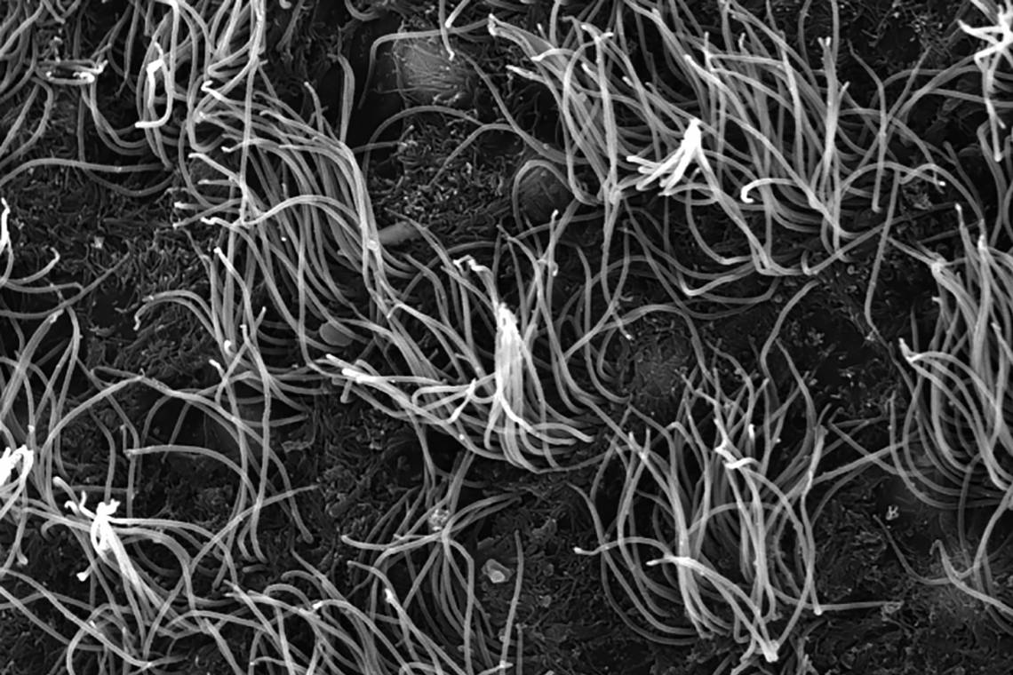 A black and white microscope image of ependymal cells in the brain