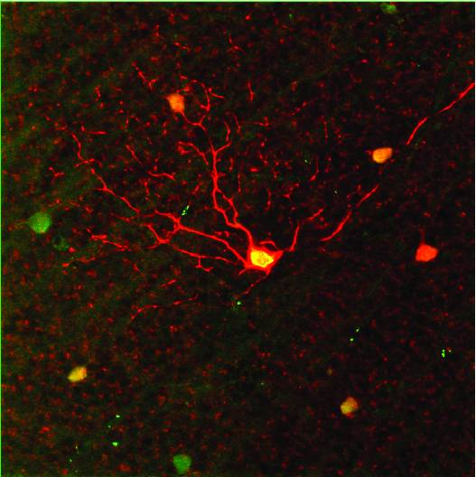 The ganglion cell layer of the retina is labelled with red to show the presence of a cell sensitive to motion in the upward direction. In low light, these cells pick up the faintest signals of any kind of motion. (Image: Duke, Univ. of Victoria)