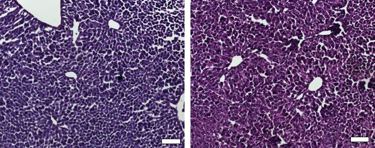 Histological sections of liver from control mice treated with saline (left) and the CRISPR/Cas9 epigenetic repression system in which cholesterol levels were lowered (right) show generally normal and healthy tissue. (Gersbach Lab)