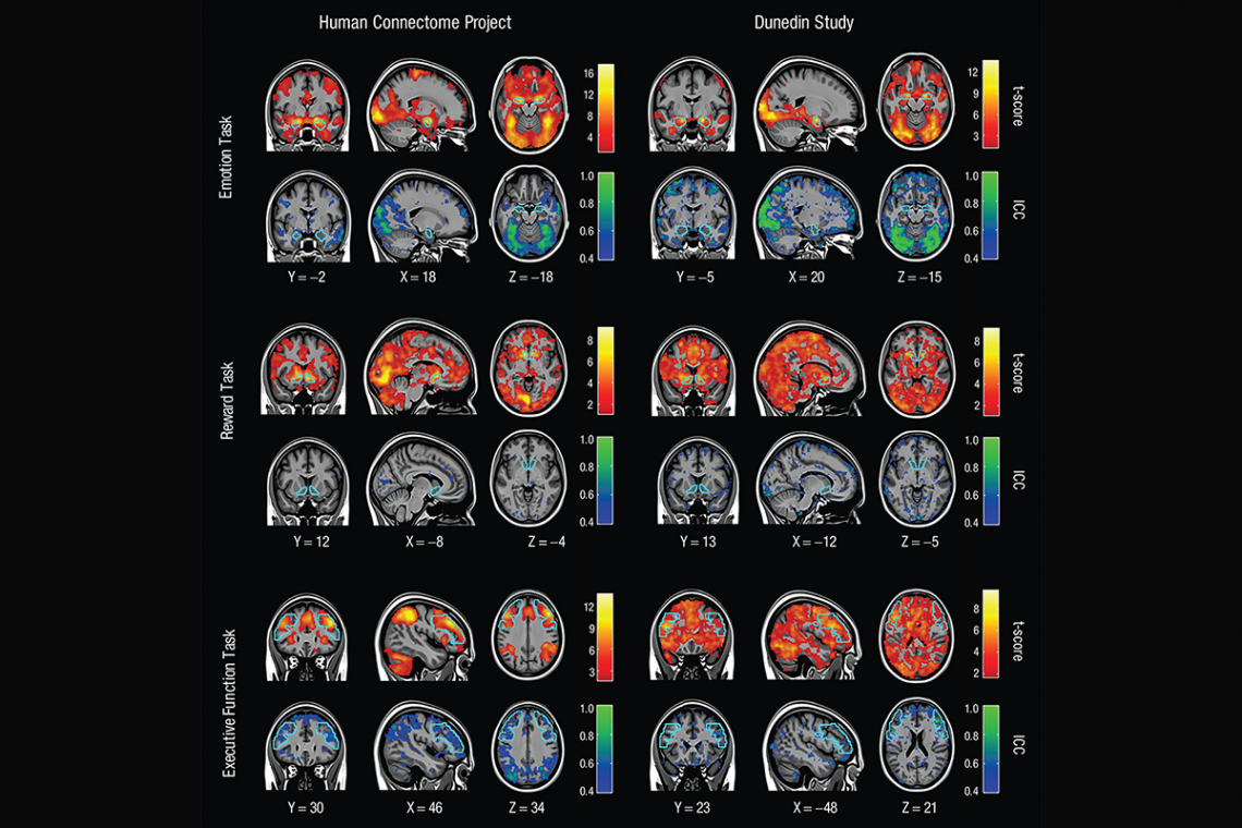 Brain scans showing functional MRI mapping for three tasks across two different days. Warm colors show the high consistency of activation levels across a group of people. Cool colors represent how poorly unique patterns of activity can be reliably measure