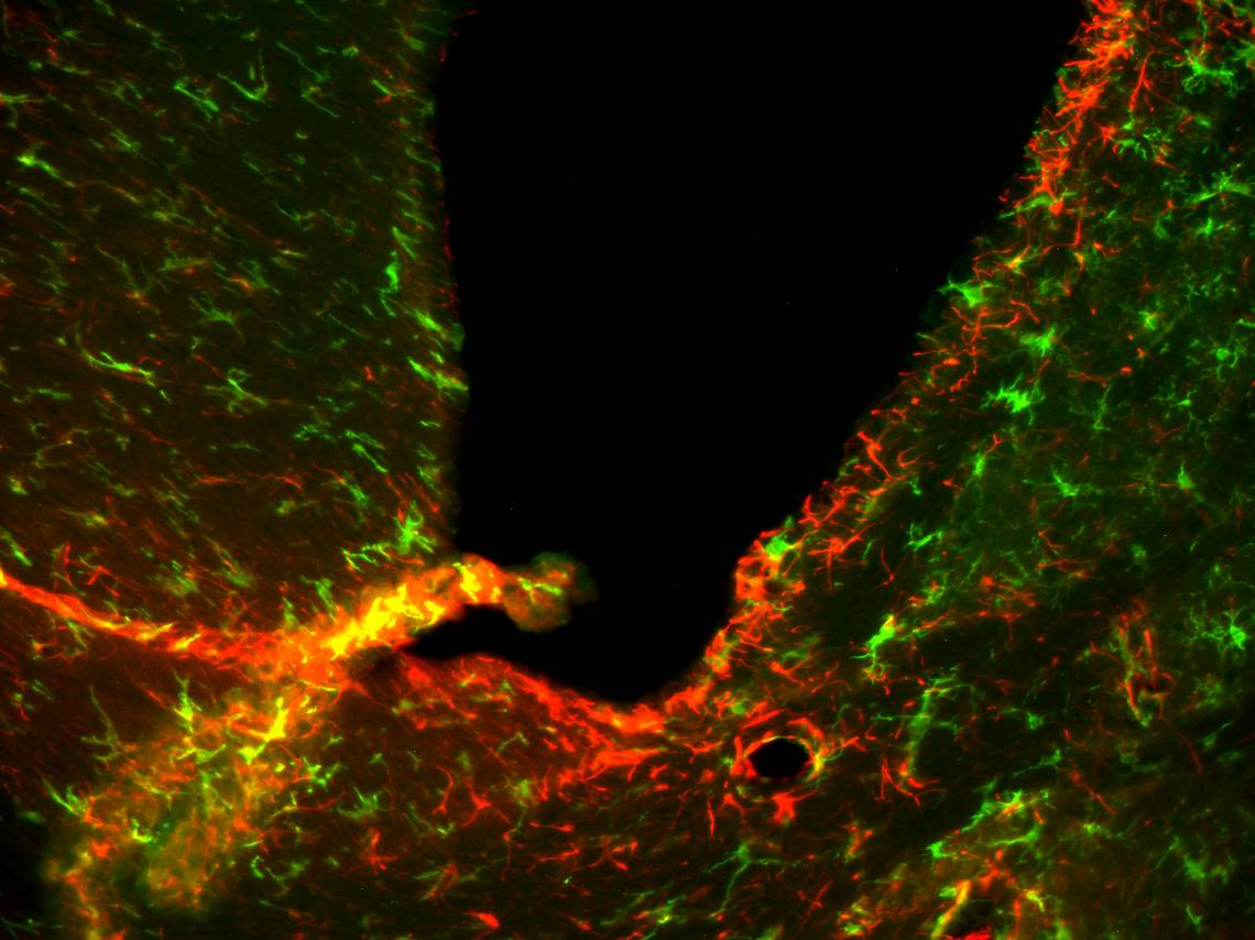 A microscope view of neurons (green) and immune cells (red) inside the brain of a mouse with a drug-resistant form of a disease closely related to MS. Courtesy of Mari Shinohara.