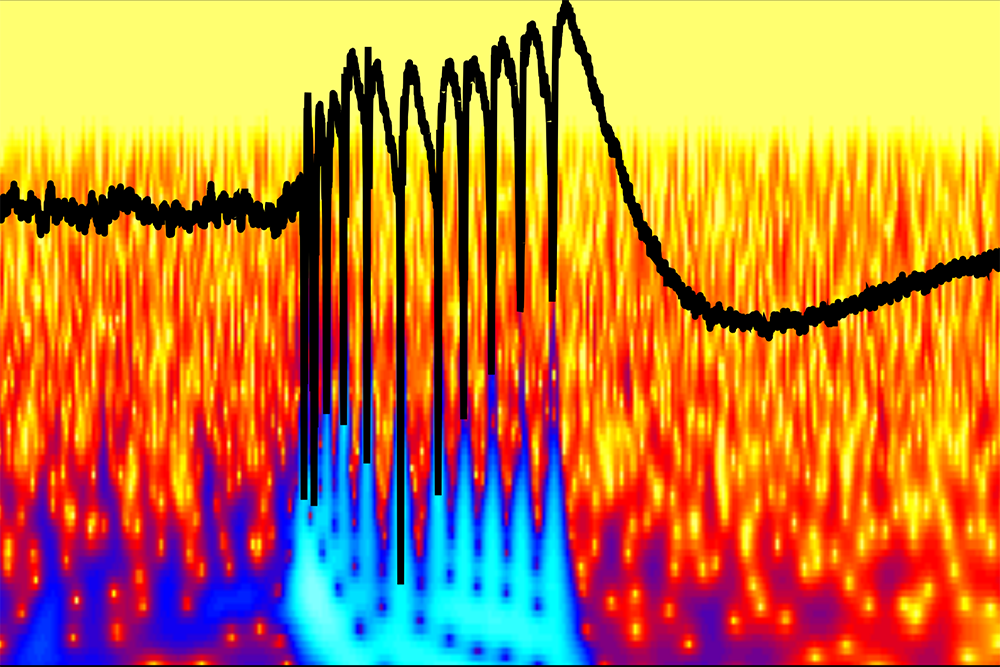 This colorful graph shows a peak of abnormal epileptic brain activity in a brain's hippocampus in which an inhibitory protein called InSyn1 has been depleted. Credit: Akiyoshi Uezu, Dan Kanak and Scott Soderling