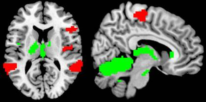 A research MRI of the brain, with active areas highlighted.  Photo credit – Tobias Egner