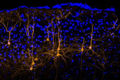 A mouse brain's motor cortex shows a subset of neurons, labeled in orange, that have long axons extending to the auditory cortex. These neurons convey movement-related signals that can alter hearing. Blue dots in the background show brain cells that do n
