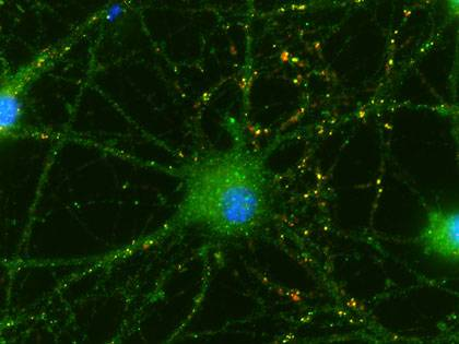 Cells isolated from newborns' umbilical cords help neurons make new connections (shown in yellow) with their neighbors. Image credit: Sehwon Koh, Duke University