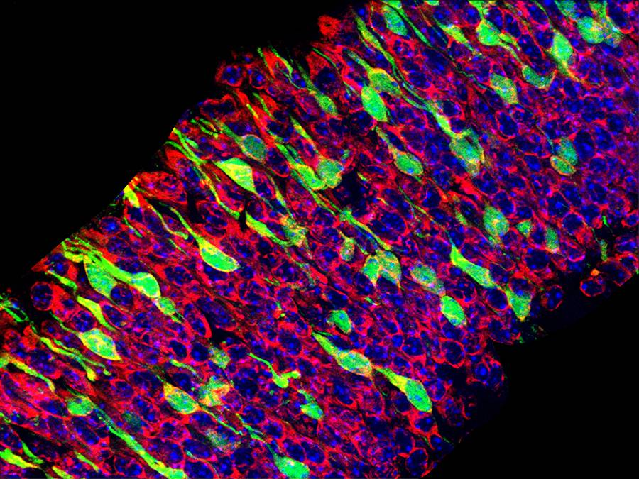 In mice with genetic forms of microcephaly, stem cells (red or blue) die off before they can divide and become mature neurons (green). Too much of a protein called p53 is at least partly responsible for underdeveloped brains. Photo by John McMahon.