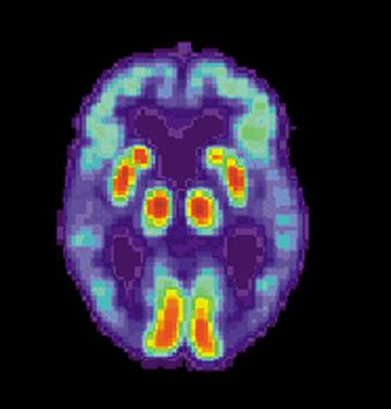 Positron Emission Tomography scan of a brain affected by cognitive declines . (NIH