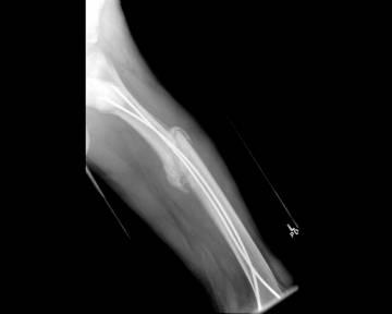 image of interior of broken bone