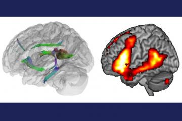 brain scans showing impact of alzheimer's