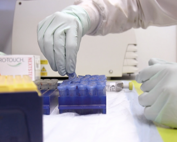 HIV vaccine research continues
