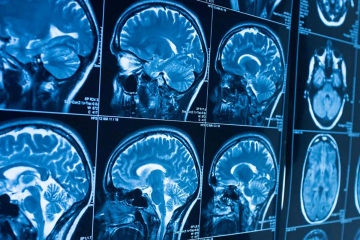 Screen of Brain scans