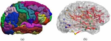 Graph theory allows researchers to model the structural and functional connection between regions of the brain. Image courtesy of Shu-Hsien Chu et al