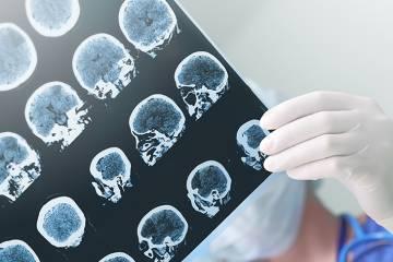 Brain scans of an Alzheimer's patient