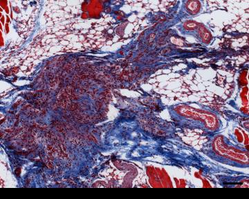 staining image shows collagen deposit, in blue
