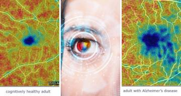 images of retinas of healthy individual and one with Alzheimer's