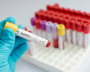 A  new international, multi-university center co-led by the Duke Human Vaccine Institute and the University of Connecticut aims to develop a vaccine for syphilis.